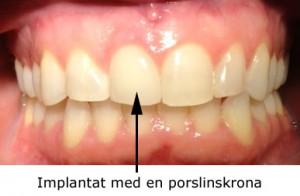 implantat_02